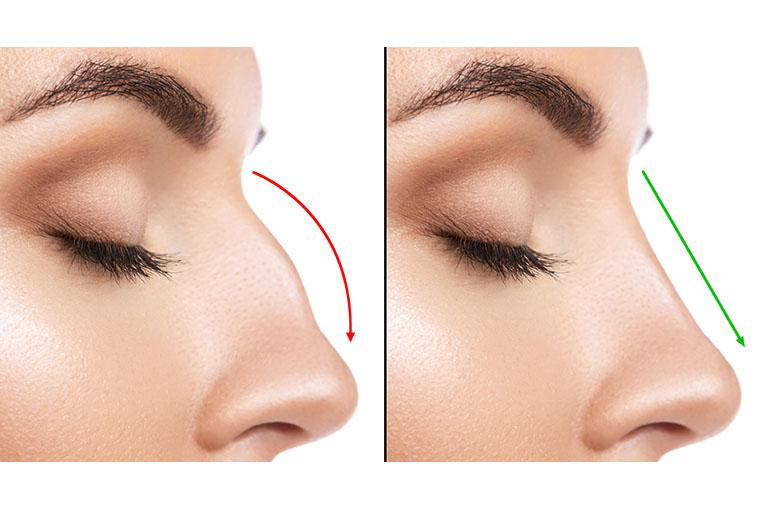 鼻骨形成法